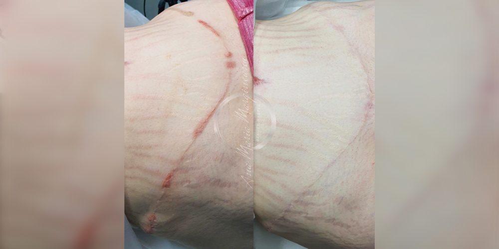 Start ON – Curs Online pigmentare cicatrici
