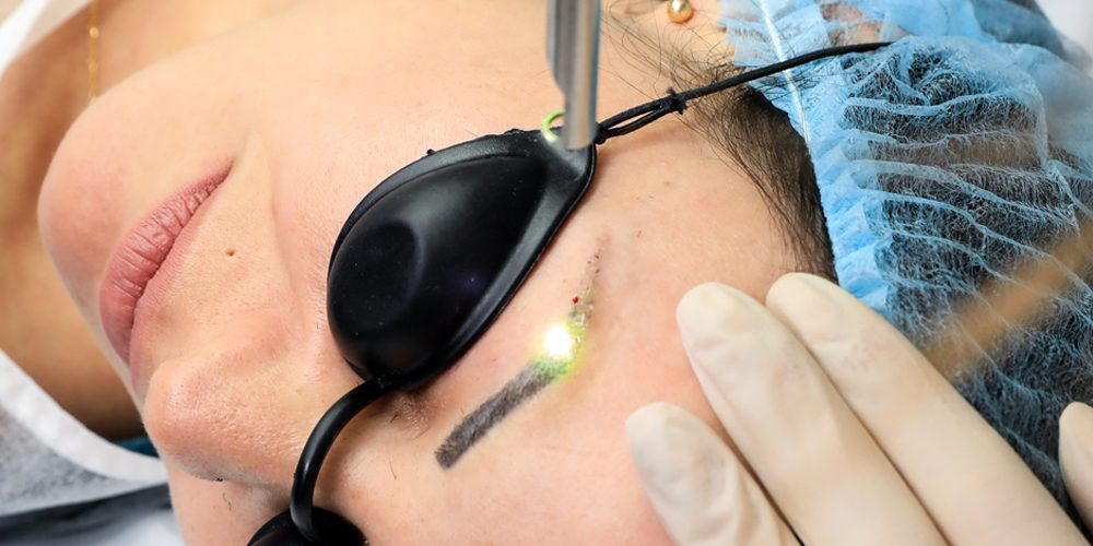 Start ON – Curs Online laser tattoo removal
